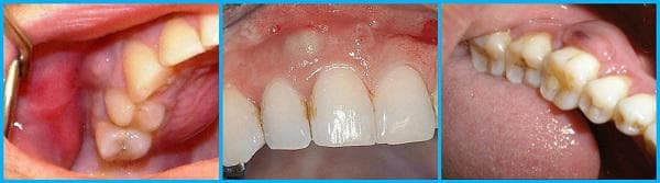 Абсцес на зъба