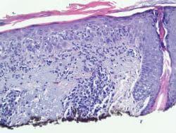 Хистопатология на актинична кератоза