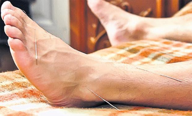 Акупунктура в областта на крака