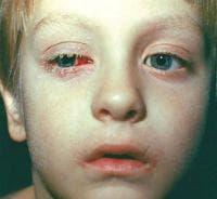 Аденовирус като причина за болести, класифицирани другаде - промени в окото