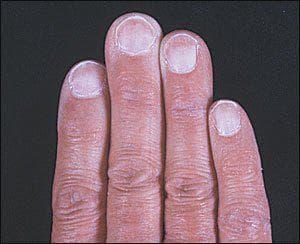 бледност на ноктите