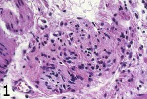 микроскопско изследване на ахалазия на хранопровода