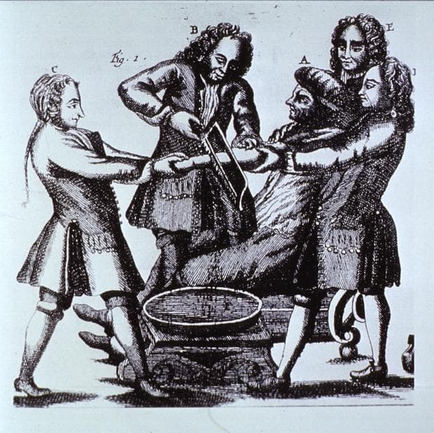 средновековна операция