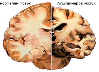 Алцхаймеров мозък