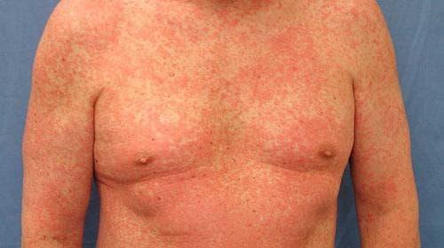 Алергия към лекарства