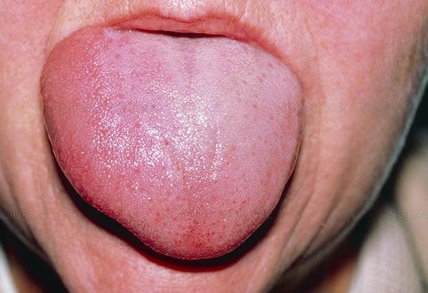 Алергия - подуване на езика