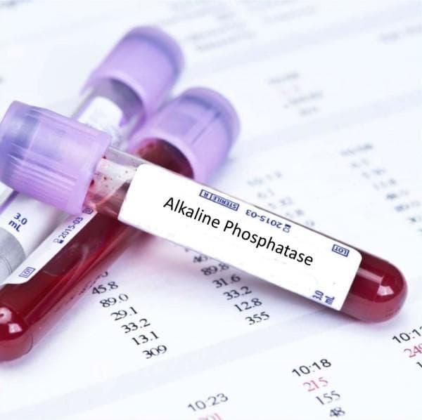 Резултати от изследването на алкална фосфатаза (АФ, ALP)