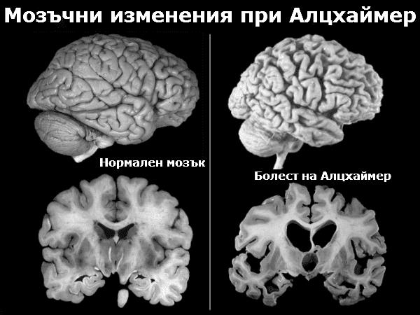 Изменения при Алцхаймер