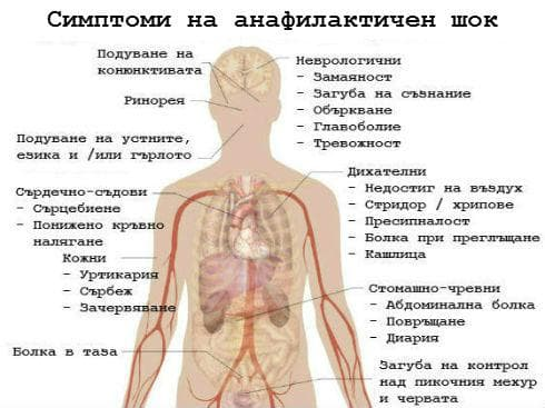 Симптоми на анафилаксия