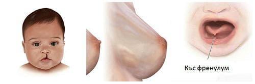 Анатомични особености, затрудняващи кърменето