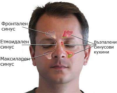 Разположение на решетъчен синус