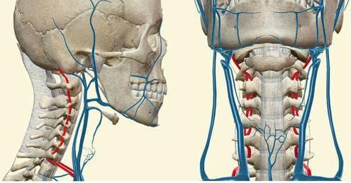 синдром на притискане на вертебралните и предните спинални артерии