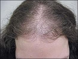 Андрогенен косопад при жени