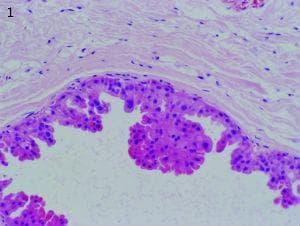 апокринна метаплазия на гърдата