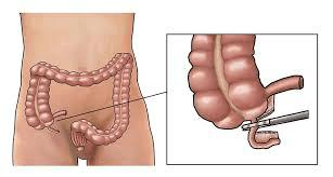 апендектомия