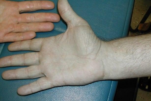 Ръце, аргирия