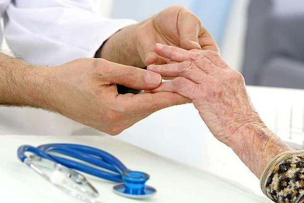 Ръце с артритни промени