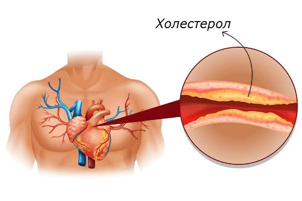 Развитие на атеросклероза