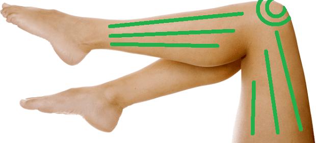 Антицелулитен масаж с вендузи на краката под коленете