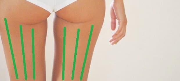 Антицелулитен масаж с вендузи на задна част на бедрата