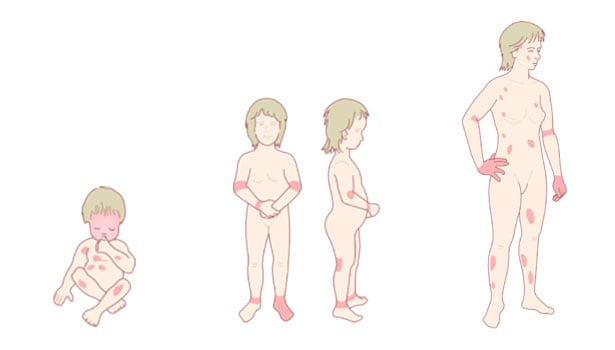 Разпространение по тялото на атопичния дерматит според възрастта