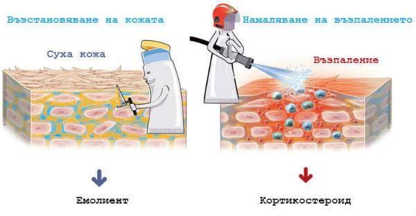 Лечение при атопичен дерматит