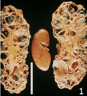 микроскопско изследване на автозомно доминантно поликистозно бъбречно заболяване