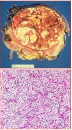 микроскопско изследване на бъбречноклетъчен карцином