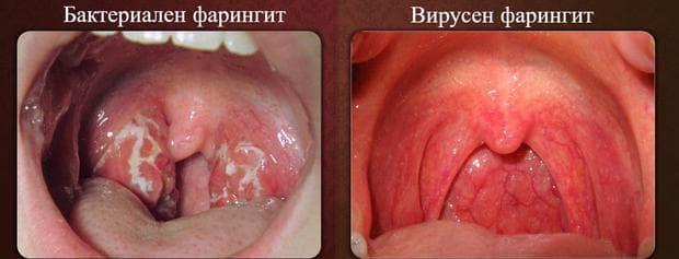 бактериален и вирусен фарингит
