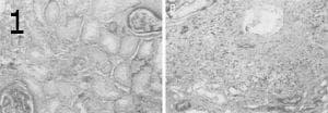 микроскопско изследване на балканска ендемична нефропатия