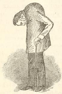 ювенилен анкилозиращ спондилоартрит