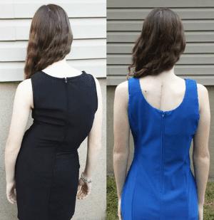 Преди и след лечение на сколиоза