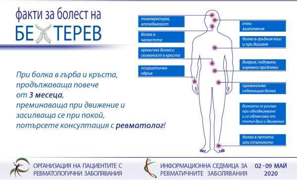 Алармиращите сигнали на болестта на Бехтерев