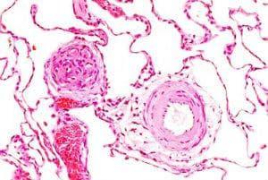 белодробна хипертония