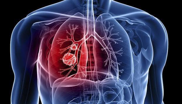 Белодробна туберкулоза