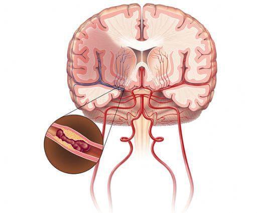 мозъчен инфарк