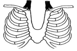 бифиден стернум