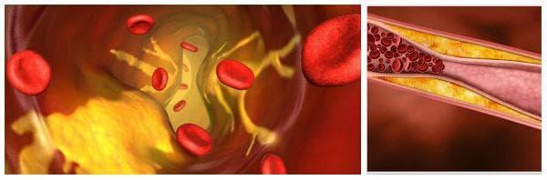 Биологични функции на хитозан