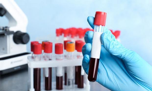 Кръвни изследвания