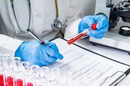 Резултати от изследването на фолиева киселина