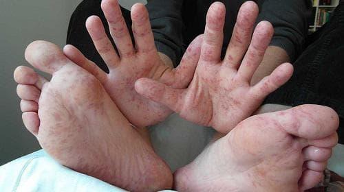 Болест ръка-крак-уста