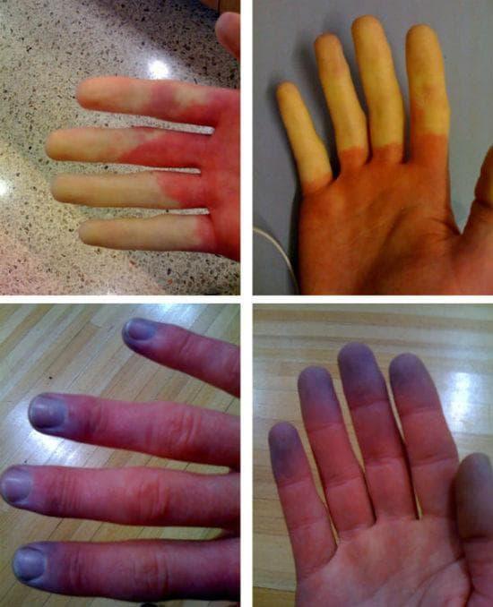 Промени в пръстите при болест на Рейно
