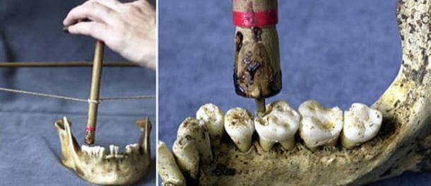 Пробиване на зъб с лък и бургия