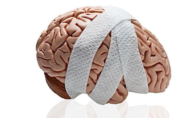травма на мозъка