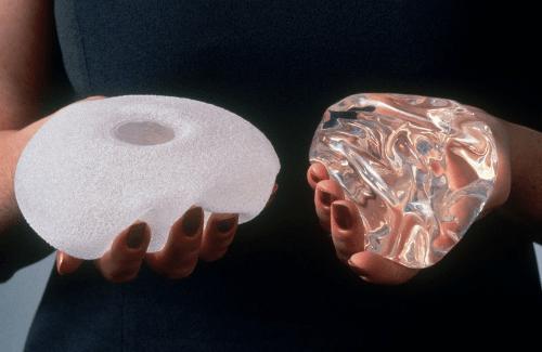 импланти за гърди