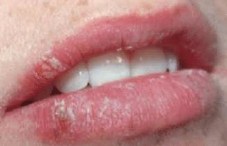 Херпес на устата