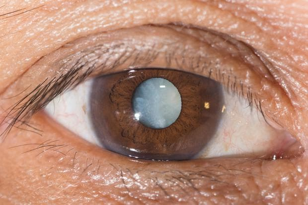 Заболяването катаракта