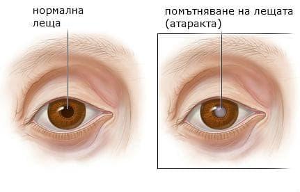 Здраво око и око с катаракта