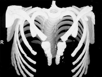 Вродена липса на гръдна кост