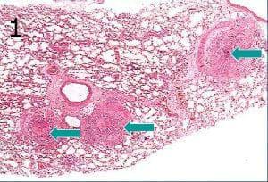 микроскопско изследване на бронхиална аства